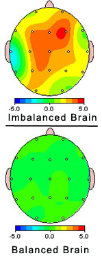 imbalanced brain and balanced brain